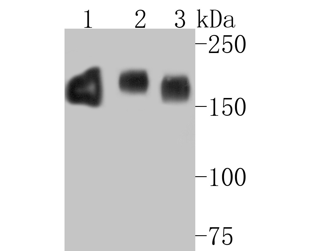 ICC staining of EGFR in A549 cells (green). Formalin fixed cells were permeabilized with 0.1% Triton X-100 in TBS for 10 minutes at room temperature and blocked with 1% Blocker BSA for 15 minutes at room temperature. Cells were probed with the primary antibody (EM1901-67, 1/50) for 1 hour at room temperature, washed with PBS. Alexa Fluor®488 Goat anti-Mouse IgG was used as the secondary antibody at 1/1,000 dilution. The nuclear counter stain is DAPI (blue).