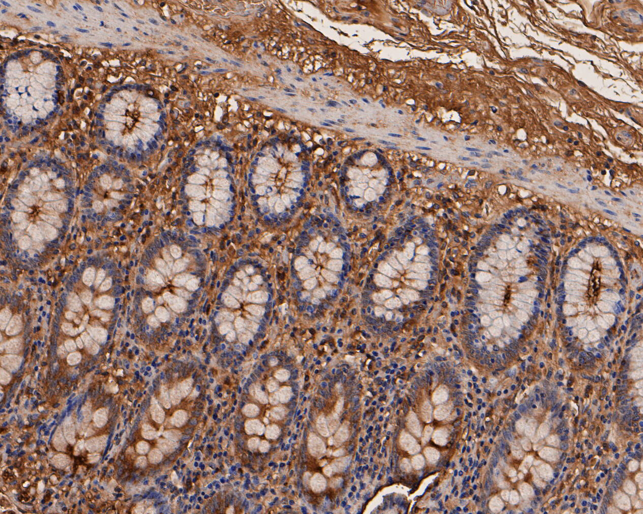 Immunohistochemical analysis of paraffin-embedded human colon tissue using anti-CEACAM6 antibody. The section was pre-treated using heat mediated antigen retrieval with Tris-EDTA buffer (pH 8.0-8.4) for 20 minutes.The tissues were blocked in 5% BSA for 30 minutes at room temperature, washed with ddH2O and PBS, and then probed with the primary antibody (EM1901-68, 1/200) for 30 minutes at room temperature. The detection was performed using an HRP conjugated compact polymer system. DAB was used as the chromogen. Tissues were counterstained with hematoxylin and mounted with DPX.