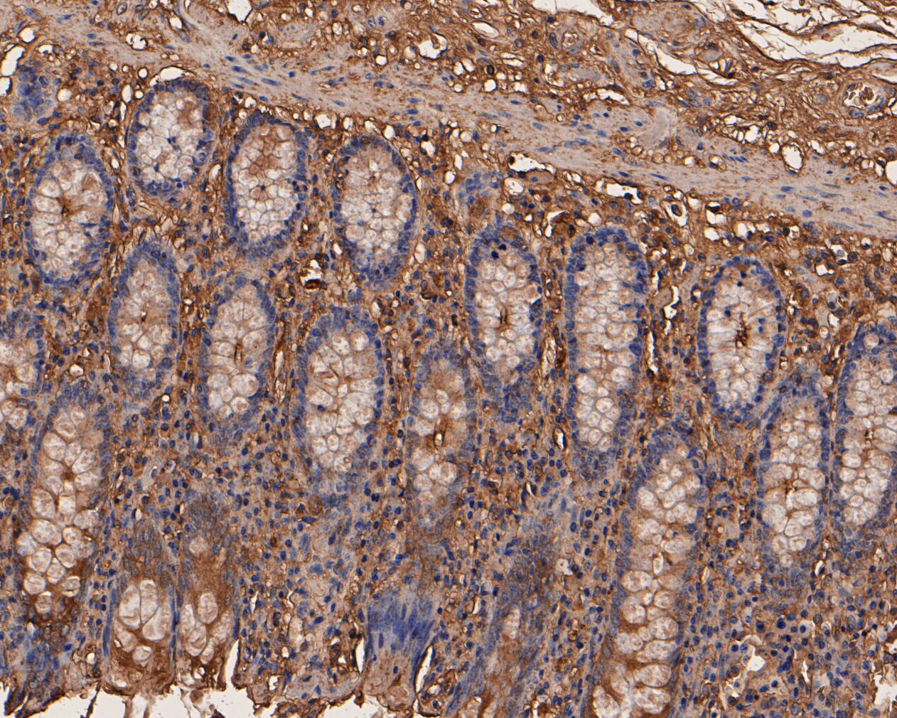 Immunohistochemical analysis of paraffin-embedded human colon tissue using anti-CEACAM6 antibody. The section was pre-treated using heat mediated antigen retrieval with Tris-EDTA buffer (pH 8.0-8.4) for 20 minutes.The tissues were blocked in 5% BSA for 30 minutes at room temperature, washed with ddH2O and PBS, and then probed with the primary antibody (EM1901-69, 1/200) for 30 minutes at room temperature. The detection was performed using an HRP conjugated compact polymer system. DAB was used as the chromogen. Tissues were counterstained with hematoxylin and mounted with DPX.