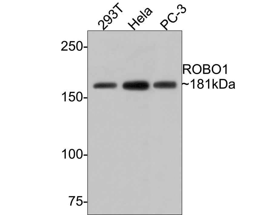 Western blot analysis of ROBO1 on Siha cell lysate. Proteins were transferred to a PVDF membrane and blocked with 5% BSA in PBS for 1 hour at room temperature. The primary antibody (EM1901-72, 1/1000) was used in 5% BSA at room temperature for 2 hours. Goat Anti-Mouset IgG - HRP Secondary Antibody (HA1006) at 1:5,000 dilution was used for 1 hour at room temperature.