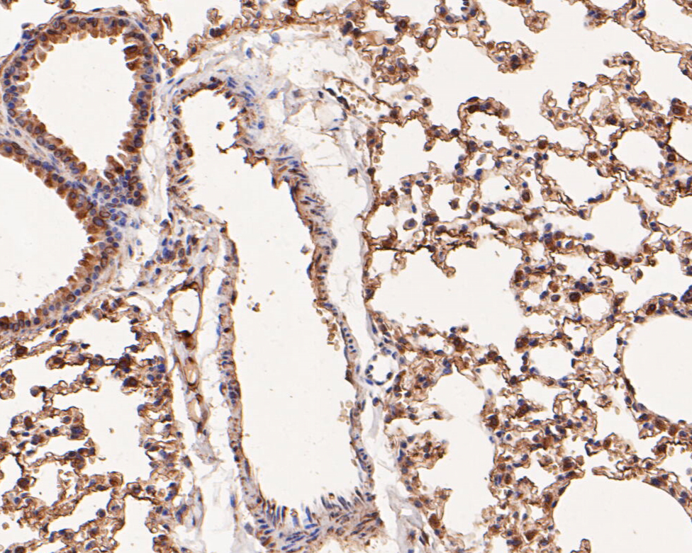 Immunohistochemical analysis of paraffin-embedded mouse lung tissue using anti-Annexin A3 antibody. The section was pre-treated using heat mediated antigen retrieval with Tris-EDTA buffer (pH 8.0-8.4) for 20 minutes.The tissues were blocked in 5% BSA for 30 minutes at room temperature, washed with ddH2O and PBS, and then probed with the primary antibody (EM1901-73, 1/400) for 30 minutes at room temperature. The detection was performed using an HRP conjugated compact polymer system. DAB was used as the chromogen. Tissues were counterstained with hematoxylin and mounted with DPX.