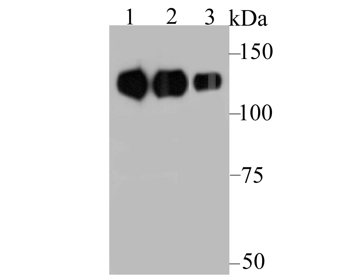 Western blot analysis of Integrin beta 1 on different lysates. Proteins were transferred to a PVDF membrane and blocked with 5% BSA in PBS for 1 hour at room temperature. The primary antibody was used at a 1:1,000 dilution in 5% BSA at room temperature for 2 hours. Goat Anti-Mouse IgG - HRP Secondary Antibody (HA1006) at 1:5,000 dilution was used for 1 hour at room temperature.<br />  Positive control: <br />  Lane 1: Human liver tissue lysate, untreated<br />  Lane 2: Mouse liver tissue lysate, untreated<br />  Lane 2: A172 cell lysate, untreated