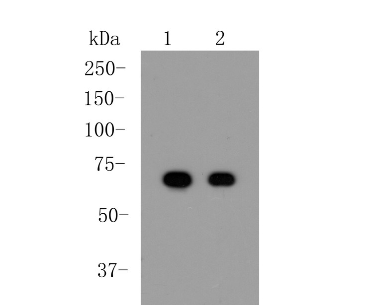 Western blot analysis of Albumin on different lysates. Proteins were transferred to a PVDF membrane and blocked with 5% BSA in PBS for 1 hour at room temperature. The primary antibody (EM1901-80, 1/50000) was used in 5% BSA at room temperature for 2 hours. Goat Anti-Mouse IgG - HRP Secondary Antibody (HA1006) at 1:5,000 dilution was used for 1 hour at room temperature.<br />  Positive control: <br />  Lane 1: Human plasma tissue lysate<br />  Lane 2: HepG2 cell lysate