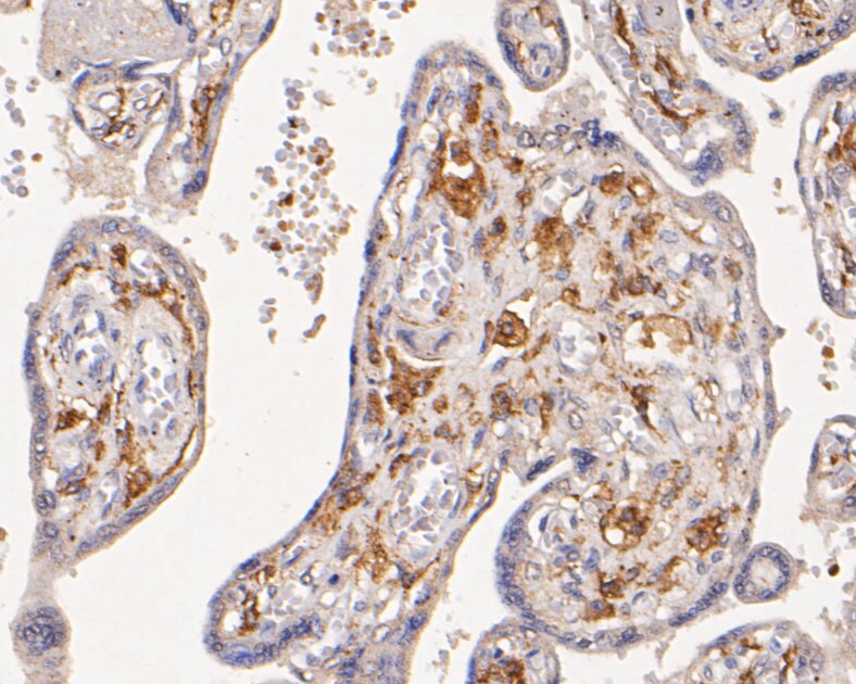 Immunohistochemical analysis of paraffin-embedded human placenta tissue using anti-CD163 antibody. The section was pre-treated using heat mediated antigen retrieval with Tris-EDTA buffer (pH 8.0-8.4) for 20 minutes.The tissues were blocked in 5% BSA for 30 minutes at room temperature, washed with ddH2O and PBS, and then probed with the primary antibody (EM1901-90, 1/200) for 30 minutes at room temperature. The detection was performed using an HRP conjugated compact polymer system. DAB was used as the chromogen. Tissues were counterstained with hematoxylin and mounted with DPX.