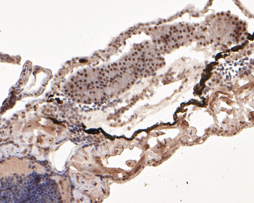 Immunohistochemical analysis of paraffin-embedded zebrafish tissue using anti-ddx24 antibody. The section was pre-treated using heat mediated antigen retrieval with sodium citrate buffer (pH 6.0) for 20 minutes. The tissues were blocked in 5% BSA for 30 minutes at room temperature, washed with ddH2O and PBS, and then probed with the primary antibody (EM1902-04, 1/400)  for 30 minutes at room temperature. The detection was performed using an HRP conjugated compact polymer system. DAB was used as the chromogen. Tissues were counterstained with hematoxylin and mounted with DPX.
