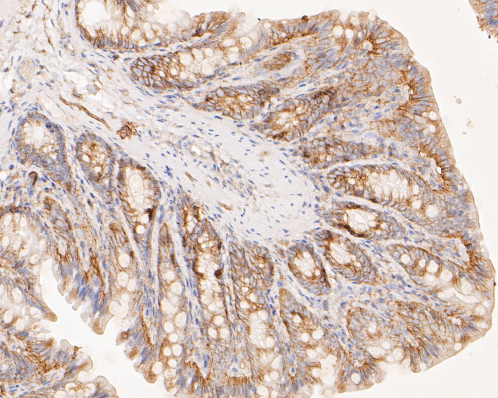 Immunohistochemical analysis of paraffin-embedded rat large intestine tissue using anti-CASK antibody. The section was pre-treated using heat mediated antigen retrieval with Tris-EDTA buffer (pH 8.0-8.4) for 20 minutes.The tissues were blocked in 5% BSA for 30 minutes at room temperature, washed with ddH2O and PBS, and then probed with the primary antibody (EM1902-09, 1/200) for 30 minutes at room temperature. The detection was performed using an HRP conjugated compact polymer system. DAB was used as the chromogen. Tissues were counterstained with hematoxylin and mounted with DPX.