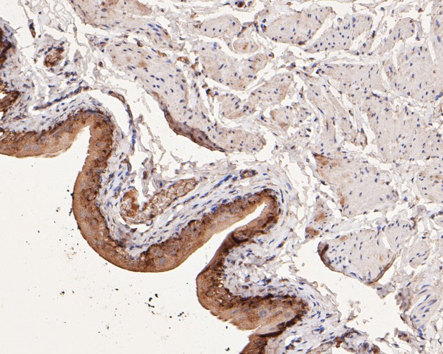 Immunohistochemical analysis of paraffin-embedded human lung carcinoma tissue using anti-COX2 antibody. The section was pre-treated using heat mediated antigen retrieval with sodium citrate buffer (pH 6.0) for 20 minutes. The tissues were blocked in 5% BSA for 30 minutes at room temperature, washed with ddH2O and PBS, and then probed with the primary antibody (EM1902-12, 1/100)  for 30 minutes at room temperature. The detection was performed using an HRP conjugated compact polymer system. DAB was used as the chromogen. Tissues were counterstained with hematoxylin and mounted with DPX.