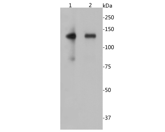 Western blot analysis of CD22 on different lysates. Proteins were transferred to a PVDF membrane and blocked with 5% BSA in PBS for 1 hour at room temperature. The primary antibody (EM1902-13, 1/500) was used in 5% BSA at room temperature for 2 hours. Goat Anti-Mouse IgG - HRP Secondary Antibody (HA1006) at 1:5,000 dilution was used for 1 hour at room temperature.<br />  Positive control: <br />  Lane 1: Raji cell lysate<br />  Lane 2: Daudi cell lysate