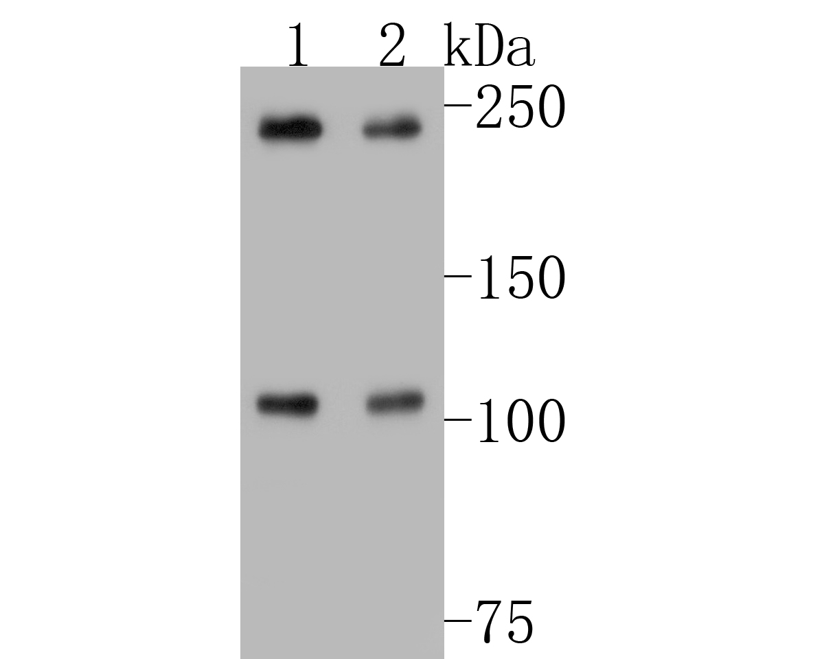 Western blot analysis of NuMA on different lysates. Proteins were transferred to a PVDF membrane and blocked with 5% BSA in PBS for 1 hour at room temperature. The primary antibody (EM1902-17, 1/500) was used in 5% BSA at room temperature for 2 hours. Goat Anti-Mouse IgG - HRP Secondary Antibody (HA1006) at 1:5,000 dilution was used for 1 hour at room temperature.<br /> Positive control: <br /> Lane 1: Raji cell lysate<br /> Lane 2: MCF-7 cell lysate