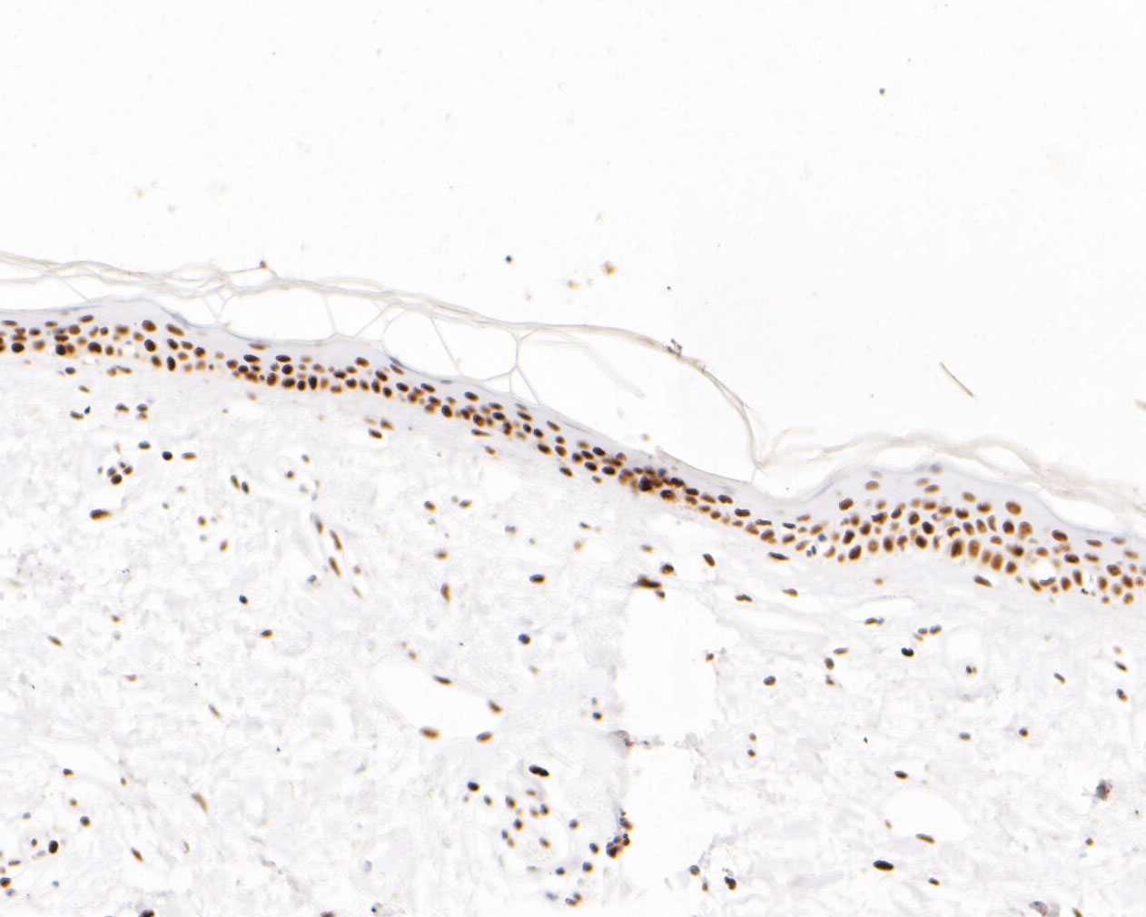 Immunohistochemical analysis of paraffin-embedded human skin tissue using anti-MSH6 antibody. The section was pre-treated using heat mediated antigen retrieval with sodium citrate buffer (pH 6.0) for 20 minutes. The tissues were blocked in 5% BSA for 30 minutes at room temperature, washed with ddH2O and PBS, and then probed with the primary antibody (EM1902-24, 1/200)  for 30 minutes at room temperature. The detection was performed using an HRP conjugated compact polymer system. DAB was used as the chromogen. Tissues were counterstained with hematoxylin and mounted with DPX.