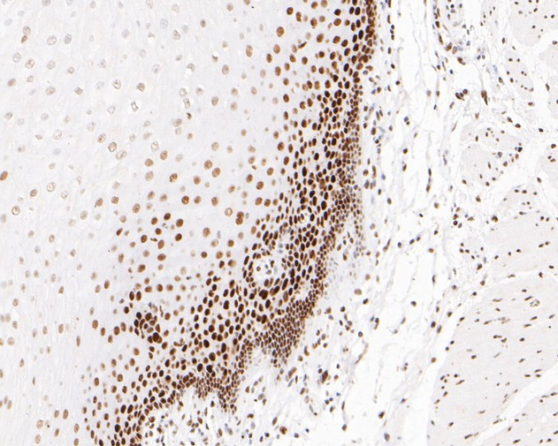 Immunohistochemical analysis of paraffin-embedded human esophagus tissue using anti-MSH6 antibody. The section was pre-treated using heat mediated antigen retrieval with sodium citrate buffer (pH 6.0) for 20 minutes. The tissues were blocked in 5% BSA for 30 minutes at room temperature, washed with ddH2O and PBS, and then probed with the primary antibody (EM1902-24, 1/200)  for 30 minutes at room temperature. The detection was performed using an HRP conjugated compact polymer system. DAB was used as the chromogen. Tissues were counterstained with hematoxylin and mounted with DPX.