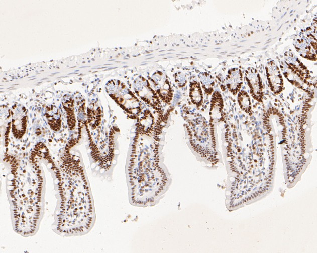 Immunohistochemical analysis of paraffin-embedded mouse colon tissue using anti-MSH6 antibody. The section was pre-treated using heat mediated antigen retrieval with sodium citrate buffer (pH 6.0) for 20 minutes. The tissues were blocked in 5% BSA for 30 minutes at room temperature, washed with ddH2O and PBS, and then probed with the primary antibody (EM1902-24, 1/200)  for 30 minutes at room temperature. The detection was performed using an HRP conjugated compact polymer system. DAB was used as the chromogen. Tissues were counterstained with hematoxylin and mounted with DPX.