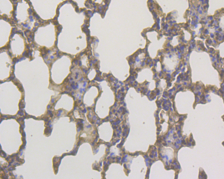 Immunohistochemical analysis of paraffin-embedded rat lung tissue using anti-DAP Kinase 1 antibody. The section was pre-treated using heat mediated antigen retrieval with Tris-EDTA buffer (pH 8.0-8.4) for 20 minutes.The tissues were blocked in 5% BSA for 30 minutes at room temperature, washed with ddH2O and PBS, and then probed with the primary antibody (EM1902-25, 1/100) for 30 minutes at room temperature. The detection was performed using an HRP conjugated compact polymer system. DAB was used as the chromogen. Tissues were counterstained with hematoxylin and mounted with DPX.