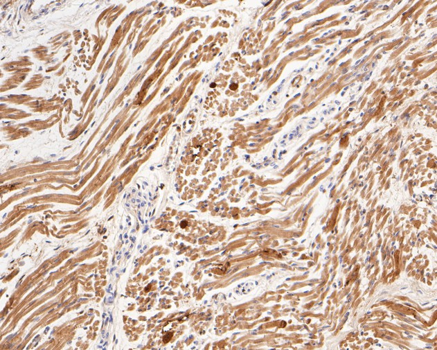 Immunohistochemical analysis of paraffin-embedded human fetal skeletal muscle tissue using anti-Myoglobin antibody. The section was pre-treated using heat mediated antigen retrieval with Tris-EDTA buffer (pH 8.0-8.4) for 20 minutes.The tissues were blocked in 5% BSA for 30 minutes at room temperature, washed with ddH2O and PBS, and then probed with the primary antibody (EM1902-27, 1/400) for 30 minutes at room temperature. The detection was performed using an HRP conjugated compact polymer system. DAB was used as the chromogen. Tissues were counterstained with hematoxylin and mounted with DPX.