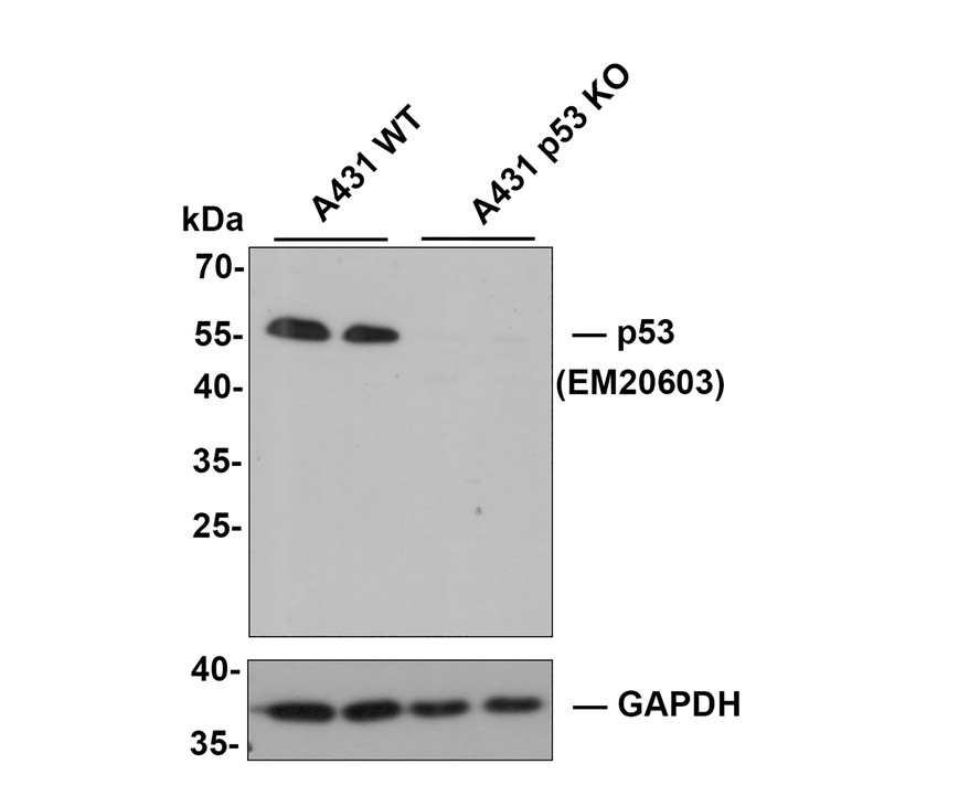 Western blot analysis of p53 on different cell lysates using anti-p53 antibody at 1/1000 dilution.<br />  Positive control: <br />  Lane 1: 293T <br />  Lane 2: A431