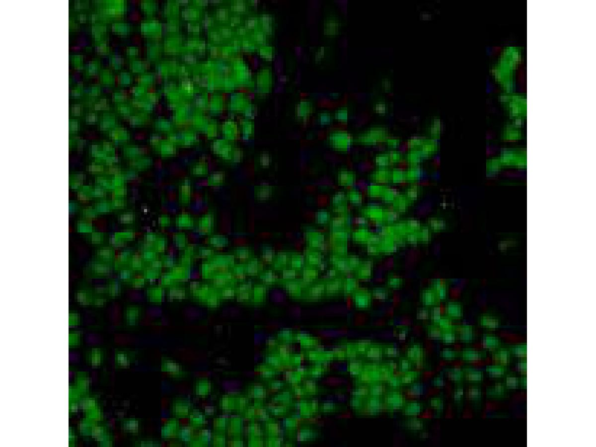 Immunohistochemical analysis of paraffin-embedded human colonic carcinoma tissue using anti-p53 antibody. Counter stained with hematoxylin.