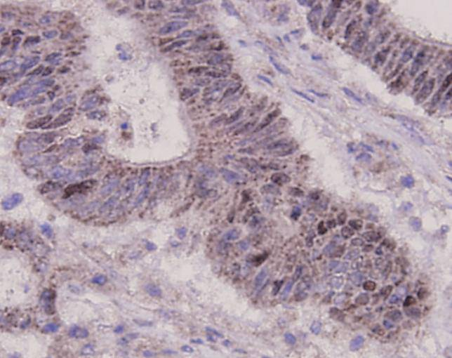 Immunohistochemical analysis of paraffin-embedded human gastric carcinoma tissue using anti-p53 antibody. Counter stained with hematoxylin.
