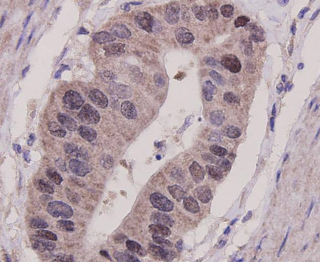 Flow cytometric analysis of Hela cells with p53 antibody at 1/100 dilution (blue) compared with an unlabelled control (cells without incubation with primary antibody; red). Goat anti mouse IgG (FITC) was used as the secondary antibody.
