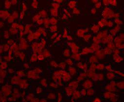 Immunohistochemical analysis of paraffin-embedded human colon carcinoma tissue using anti-Beta-actin antibody. Counter stained with hematoxylin.