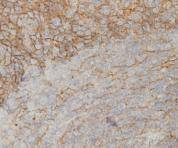 Immunohistochemical analysis of paraffin-embedded human tonsil tissue using anti-IL-6 antibody. Counter stained with hematoxylin.