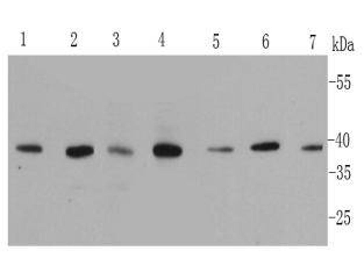 Western blot analysis of MAPK14 on different cell lysates using anti-MAPK14 antibody at 1/500 dilution.<br />  Positive control: <br />  Lane 1: A431 <br />  Lane 2: HepG2 <br />  Lane 3: Hela <br />  Lane 4: NIH/3T3 <br />  Lane 5: Jurkat <br />  Lane 6: 293T <br />  Lane 7: mouse placenta