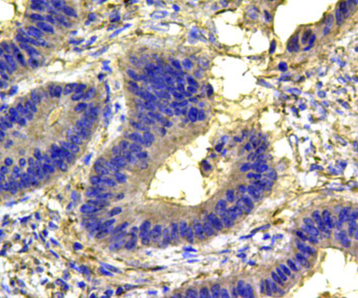 Immunohistochemical analysis of paraffin-embedded human colon carcinoma tissue using anti-MAPK14 antibody. Counter stained with hematoxylin.
