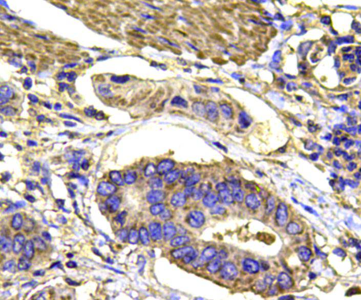 Immunohistochemical analysis of paraffin-embedded human stomach carcinoma tissue using anti-MAPK14 antibody. Counter stained with hematoxylin.