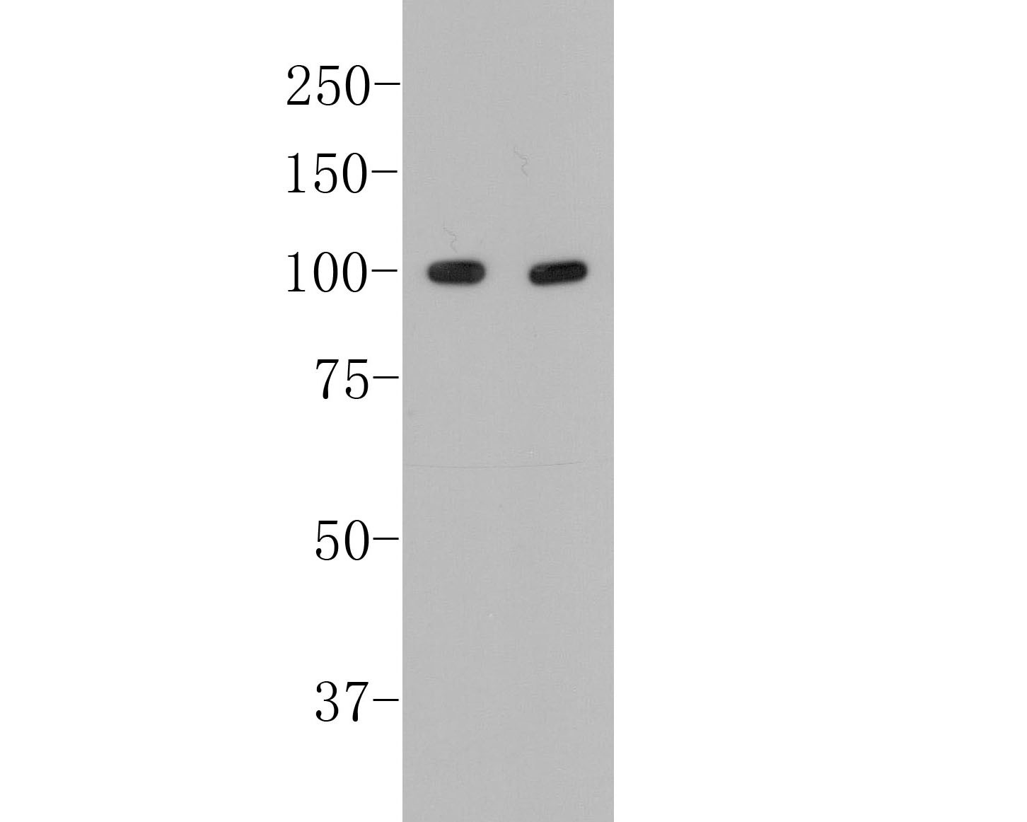 Western blot analysis of CD19 on different lysates. Proteins were transferred to a PVDF membrane and blocked with 5% BSA in PBS for 1 hour at room temperature. The primary antibody (EM40308, 1/500) was used in 5% BSA at room temperature for 2 hours. Goat Anti-Rabbit IgG - HRP Secondary Antibody (HA1001) at 1:5,000 dilution was used for 1 hour at room temperature.<br /> Positive control: <br /> Lane 1: Raji cell lysate<br /> Lane 2: Daudi cell lysate