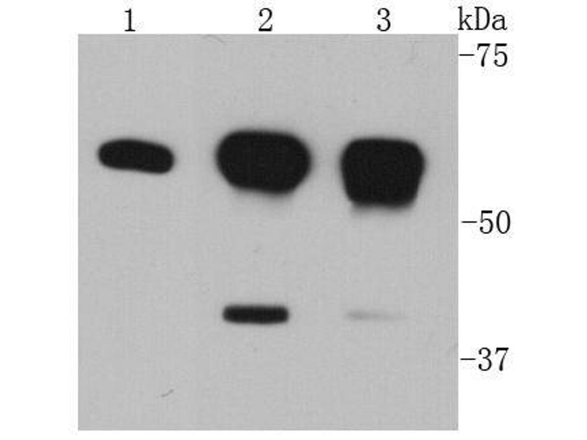 Western blot analysis of Akt1 on different cell lysates using anti-Akt1 antibody at 1/2000 dilution.<br /> Positive control: <br /> Lane 1: HepG2 <br /> Lane 2: MCF-7 <br /> Lane 3: Hela
