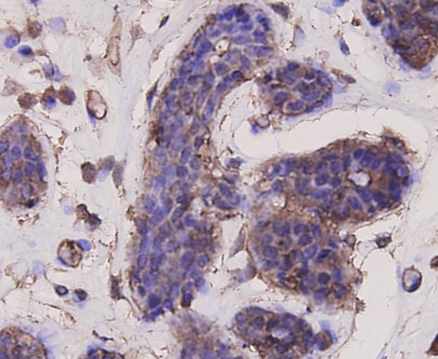 Immunohistochemical analysis of paraffin-embedded human breast carcinoma tissue using anti-Akt1 antibody. Counter stained with hematoxylin.