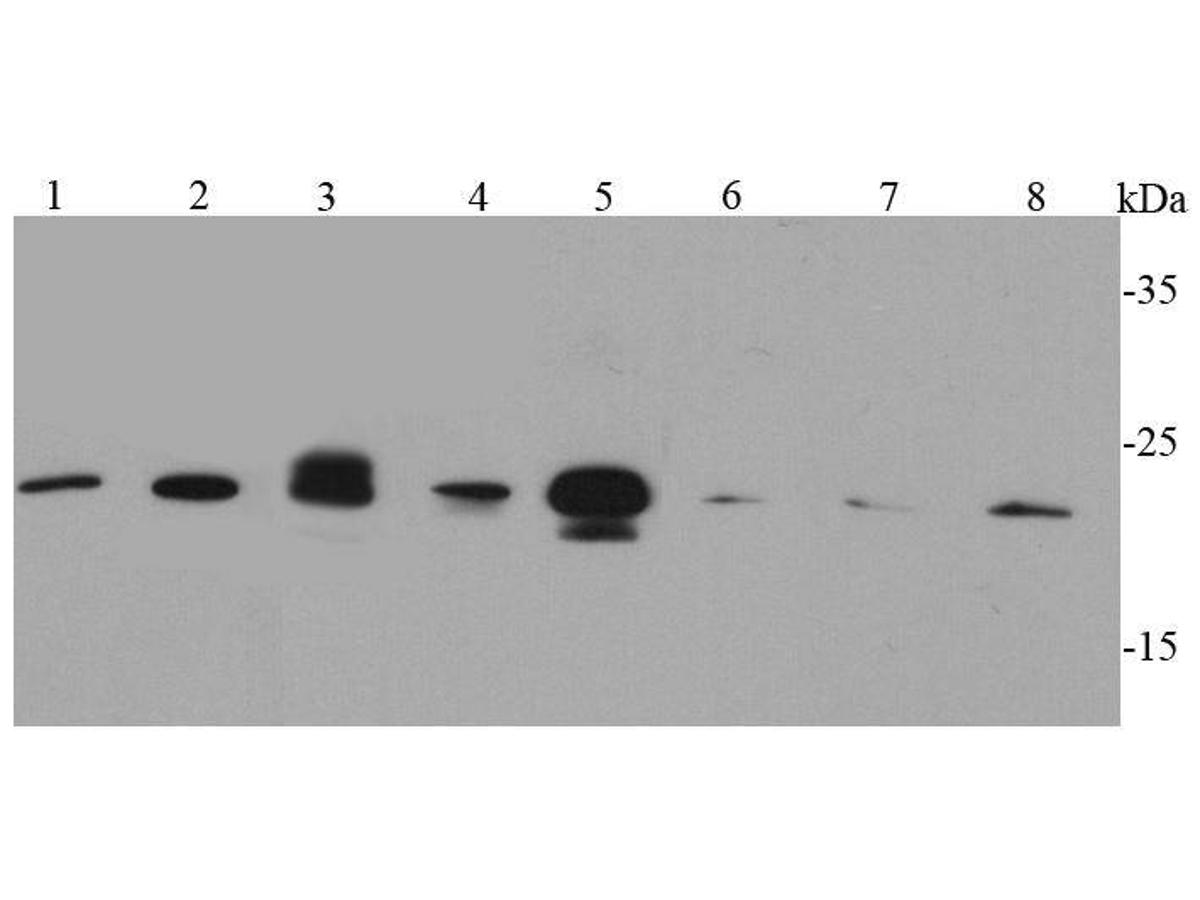 Western blot analysis of Caveolin-1 on different cell lysates using anti-Caveolin-1 antibody at 1/500 dilution.