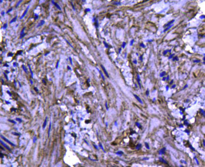 Immunohistochemical analysis of paraffin-embedded mouse bladder tissue using anti-Caveolin-1 antibody. Counter stained with hematoxylin.