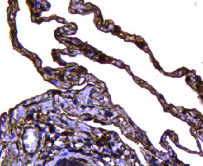 Immunohistochemical analysis of paraffin-embedded human lung tissue using anti-Caveolin-1 antibody. Counter stained with hematoxylin.