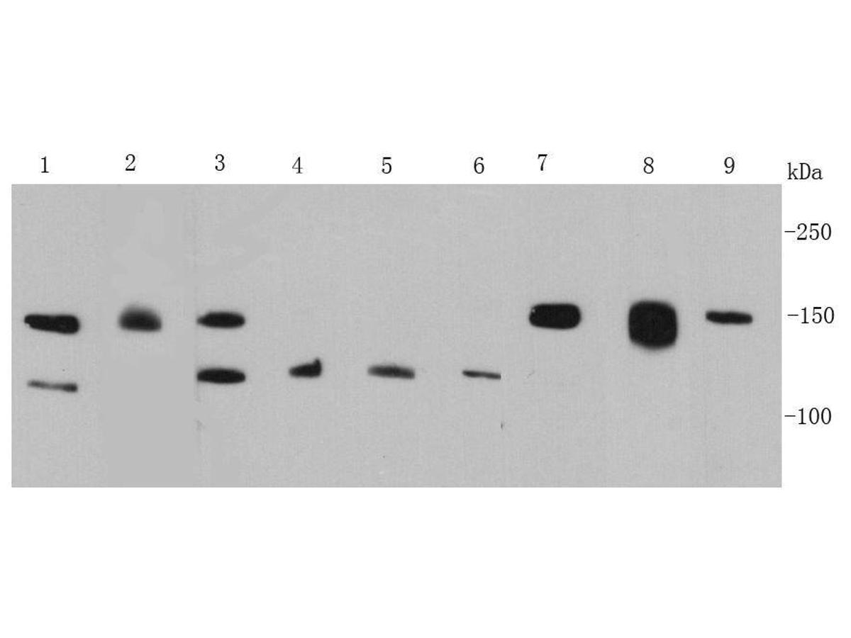 Western blot analysis of FGFR2 on different cell lysates using anti-FGFR2 antibody at 1/500 dilution.<br /> Positive control:<br /> Lane 1: MCF-7<br /> Lane 2: K562<br /> Lane 3: Hela<br /> Lane 4: HepG2<br /> Lane 5: A431<br /> Lane 6: A549<br /> Lane 7: NIH/3T3<br /> Lane 8: Jurkat<br /> Lane 9: Mouse brain