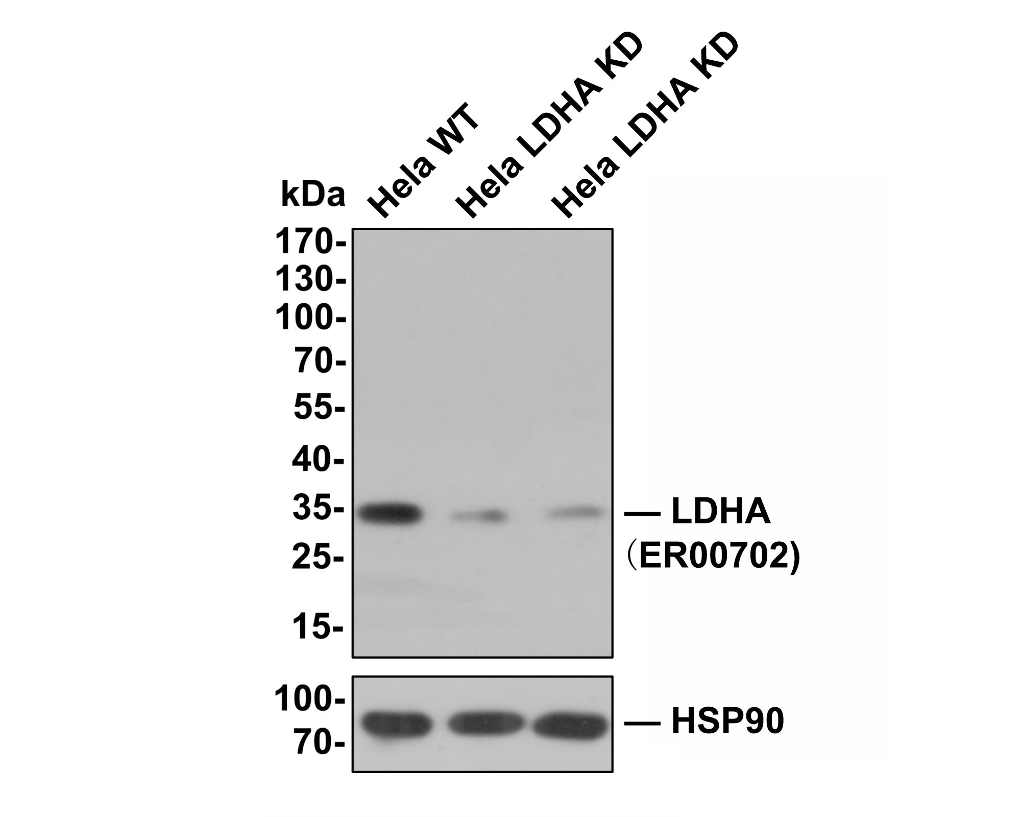 Immunohistochemical analysis of paraffin-embedded rat liver tissue using anti-LDHA antibody. The section was pre-treated using heat mediated antigen retrieval with Tris-EDTA buffer (pH 9.0) for 20 minutes.The tissues were blocked in 1% BSA for 30 minutes at room temperature, washed with ddH2O and PBS, and then probed with the primary antibody (ER00702, 1/50) for 30 minutes at room temperature. The detection was performed using an HRP conjugated compact polymer system. DAB was used as the chromogen. Tissues were counterstained with hematoxylin and mounted with DPX.