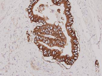 Immunohistochemical analysis of paraffin-embedded human stomach carcinoma tissue using anti-Her 2 antibody. Counter stained with hematoxylin.