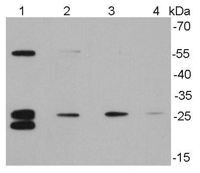 Western blot analysis of Bcl-2 on different cell lysates using anti-Bcl-2 antibody at 1/500 dilution.