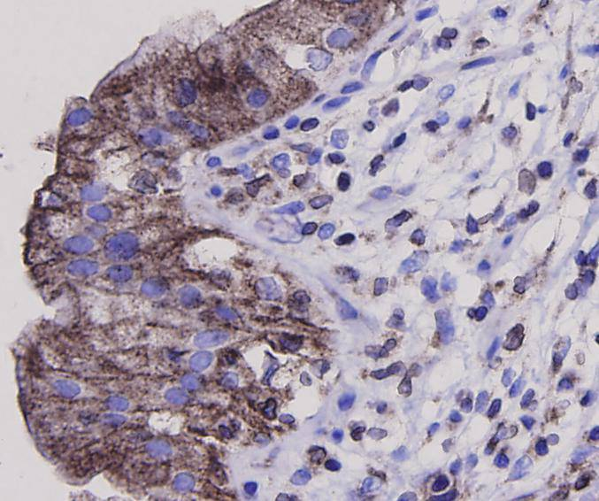 Immunohistochemical analysis of paraffin-embedded human gall bladder tissue using anti-Bax antibody. Counter stained with hematoxylin.