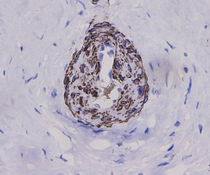 Immunohistochemical analysis of paraffin-embedded human cervical tissue using anti-Alpha smooth muscle actin antibody. Counter stained with hematoxylin.