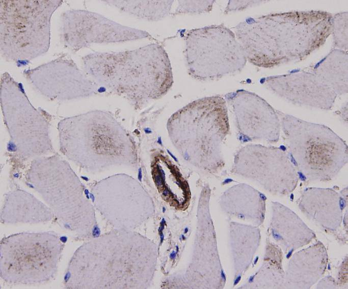 Immunohistochemical analysis of paraffin-embedded mouse skeletal muscle tissue using anti-Alpha smooth muscle actin antibody. Counter stained with hematoxylin.