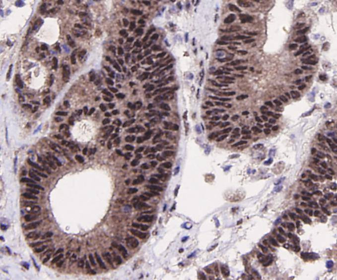 Immunohistochemical analysis of paraffin-embedded human colon carcinoma tissue using anti-SIRT1 antibody. Counter stained with hematoxylin.