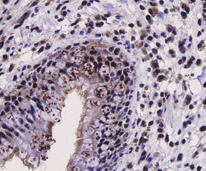 Immunohistochemical analysis of paraffin-embedded human lung carcinoma tissue using anti-SIRT1 antibody. Counter stained with hematoxylin.