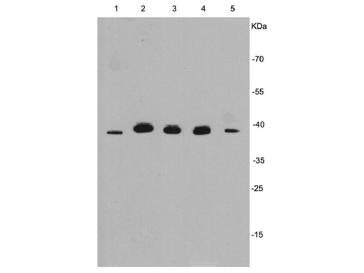 Western blot analysis of ERK1 on different cell lysates using anti- ERK1 antibody at 1/1000 dilution.<br /> Positive control:<br /> Lane 1: Hela<br /> Lane 2: SW480<br /> Lane 3: HCT116<br /> Lane 4: HepG2<br /> Lane 5: PC12