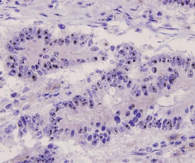 Immunohistochemical analysis of paraffin-embedded human breast carcinoma tissue using anti-ERK1 antibody. Counter stained with hematoxylin.