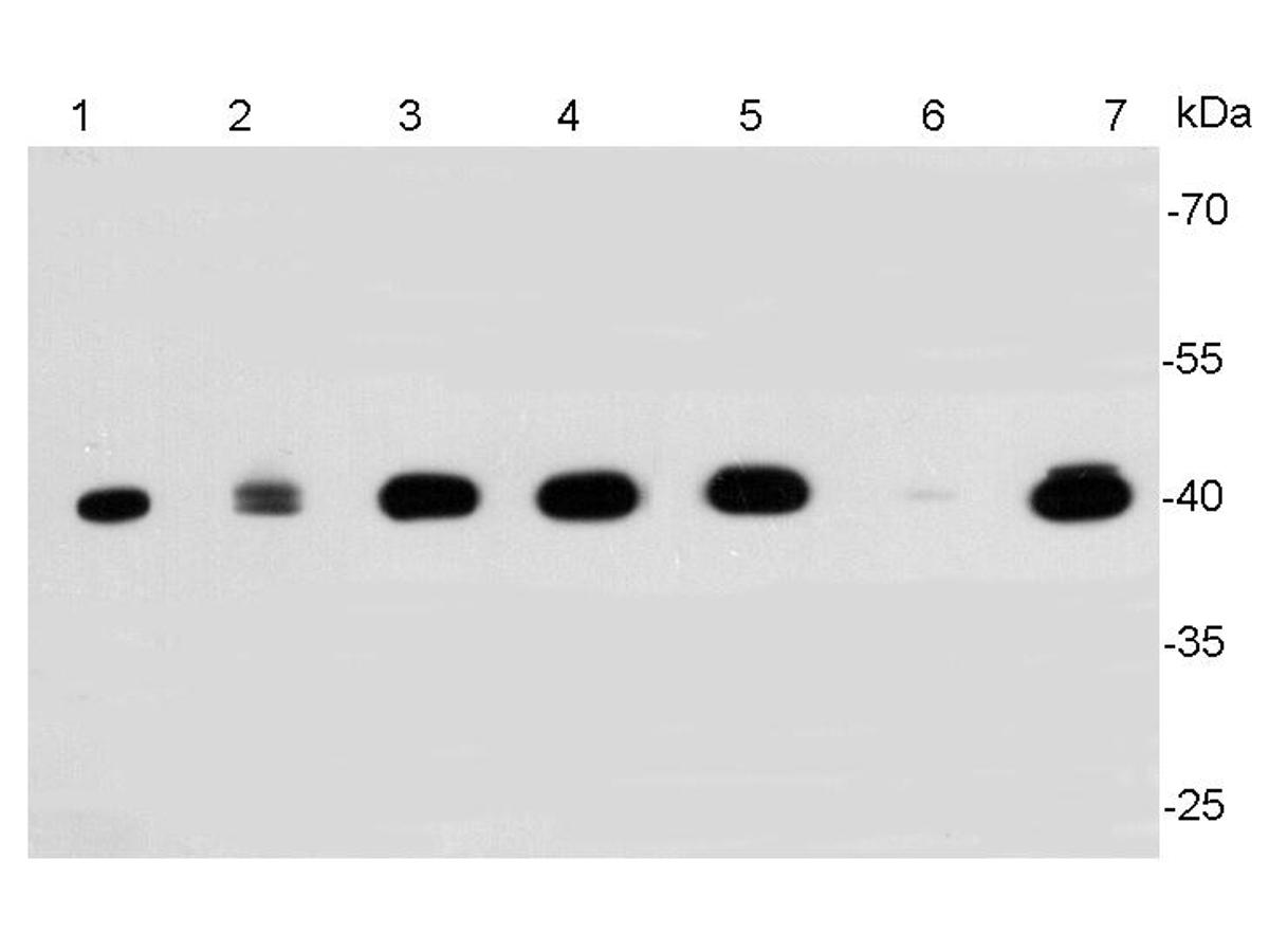 Western blot analysis of ERK2 on different lysates. Proteins were transferred to a PVDF membrane and blocked with 5% BSA in PBS for 1 hour at room temperature. The primary antibody was used at a 1:2,000 dilution in 5% BSA at room temperature for 2 hours. Goat Anti-Rabbit IgG - HRP Secondary Antibody (HA1001) at 1:5,000 dilution was used for 1 hour at room temperature.<br />  Positive control: <br />  Lane 1: Jurkat cell lysate, untreated <br />  Lane 2: A431 cell lysate, untreated<br />  Lane 3: PC-12 cell lysate, untreated <br />  Lane 4: NIH/3T3 cell lysate, untreated<br />  Lane 5: Hela cell lysate, untreated <br />  Lane 6: HT-29 cell lysate, untreated<br />  Lane 7: MCF-7 cell lysate, untreated