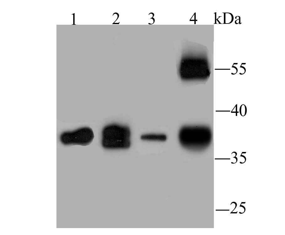 Western blot analysis of WNT2 on different lysates using anti-WNT2 antibody at 1/1,000 dilution.<br />  Positive control:<br />  Lane 1: PC-3M<br />  Lane 2: Mouse brain tissue<br />  Lane 3: Jurkat <br />  Lane 4: Human lung tissue<br />
