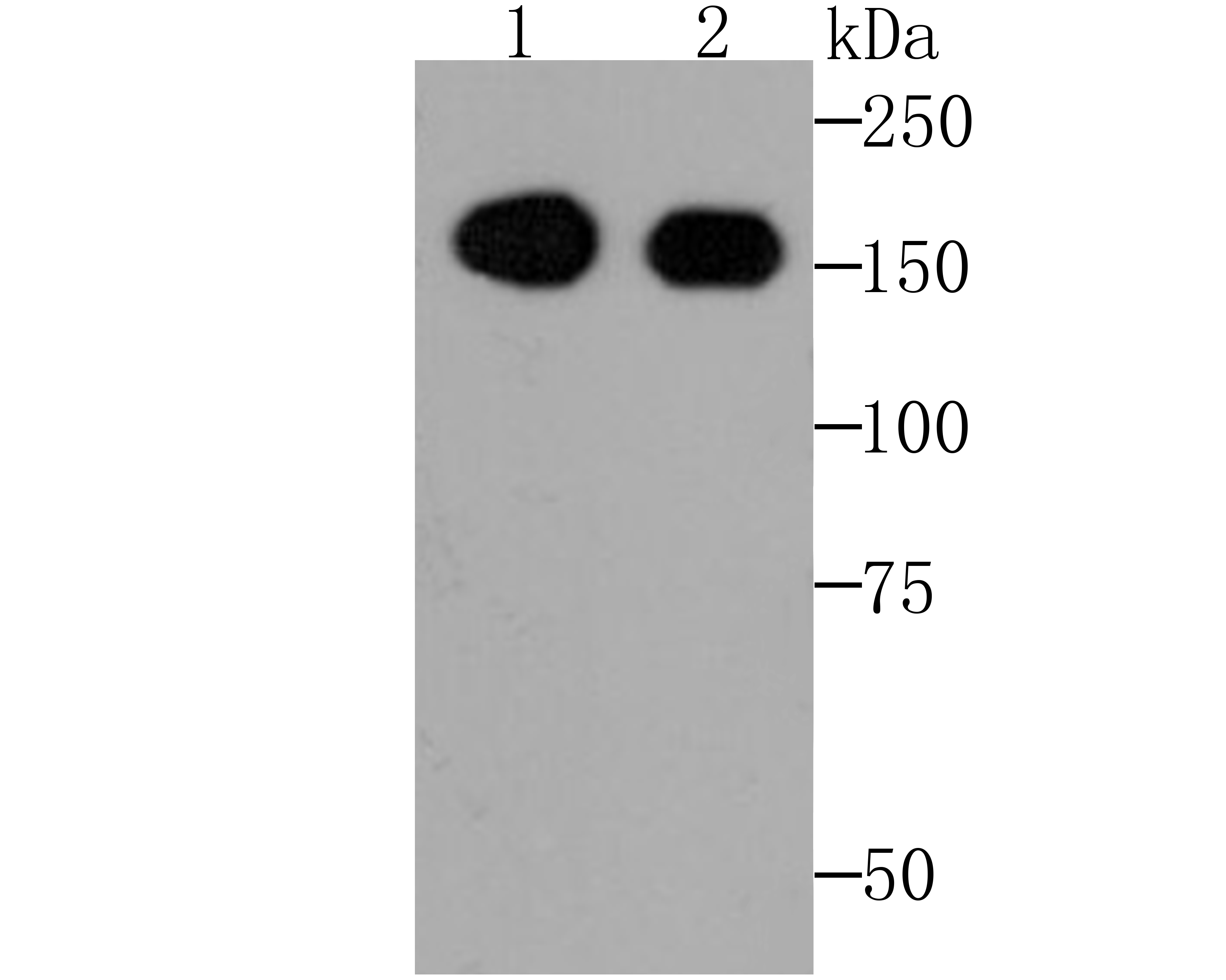 Western blot analysis of EGFR on HepG2 (1) and Hela (2) cell lysates using anti-EGFR antibody at 1/1,000 dilution.