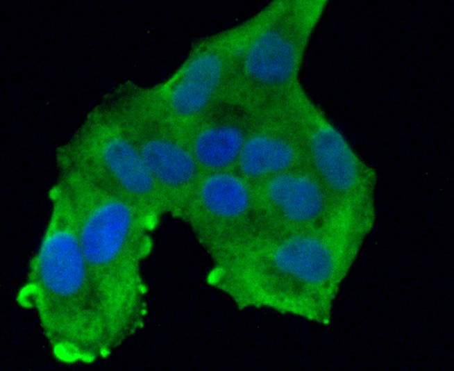 ICC staining ROBO1 in Hela cells (green). The nuclear counter stain is DAPI (blue). Cells were fixed in paraformaldehyde, permeabilised with 0.25% Triton X100/PBS.