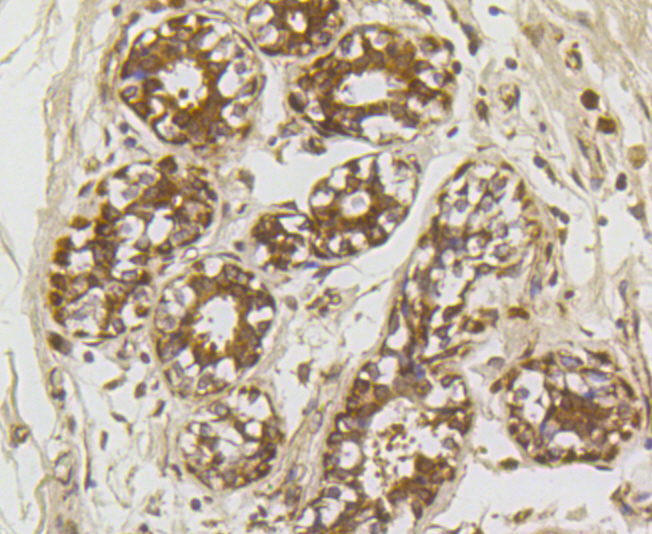 Immunohistochemical analysis of paraffin-embedded human breast tissue using anti-ROBO1 antibody. Counter stained with hematoxylin.