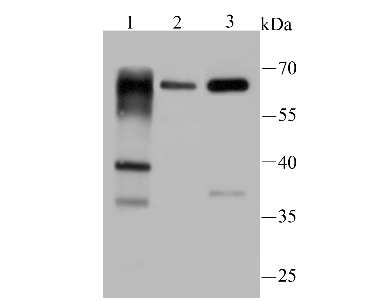 Western blot analysis of PINK1 on different lysates using anti-PINK1 antibody at 1/200 dilution.<br /> Positive control:<br /> Lane 1: A431 cell lysates<br /> Lane 2: Mouse testis tissue lysates<br /> Lane 3: Jurkat cell lysates